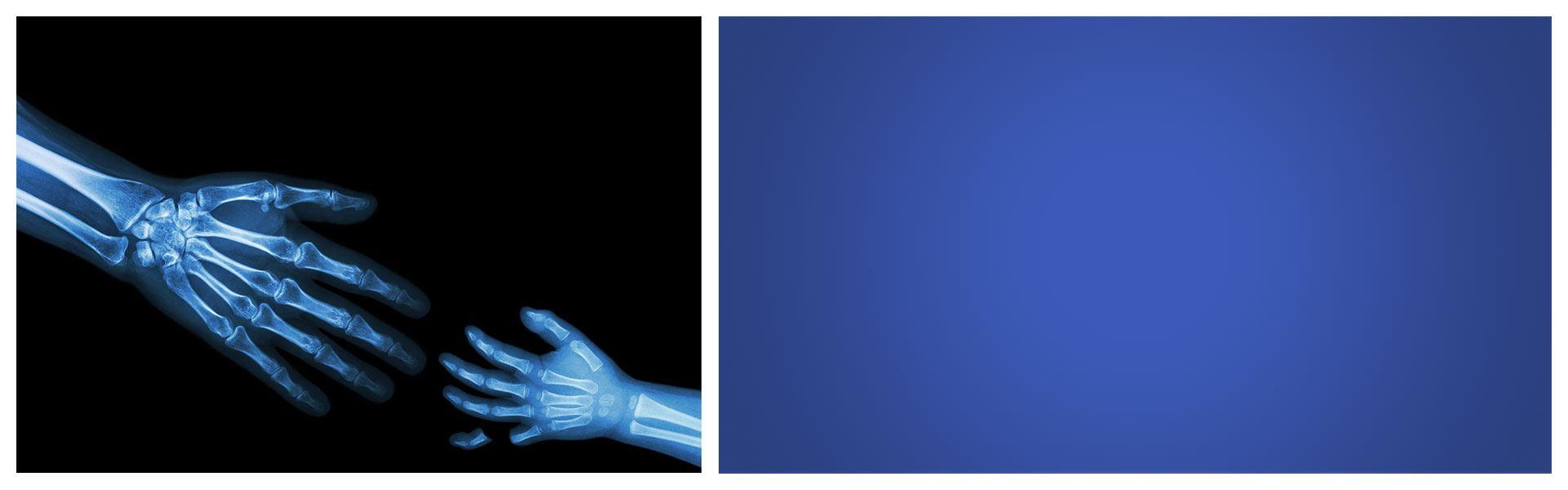 Fingersafe USA Finger Pinch Protector Guards for Door Hinges Child Broken Finger 2